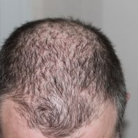 Hair loss is not inevitable