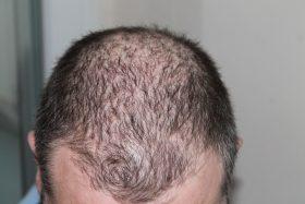 Hair loss is not inevitable