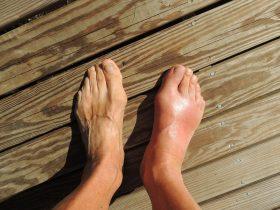 Natural gout remedies